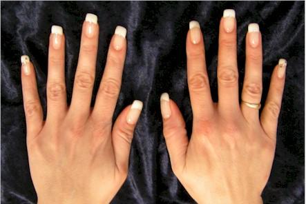 Die Behandlung des Nagels tscherepowez